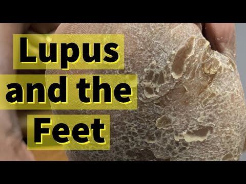 Lupus and the Feet: Severe Calluses and Dry Skin