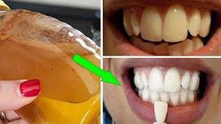 Wie Du Deine Zähne mit natürlichen Mitteln aufhellst!