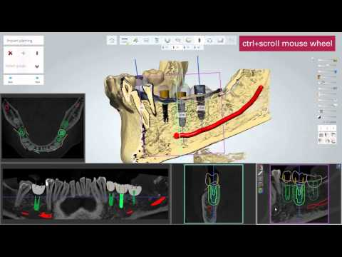 3D BioCAD - 3Shape Implant Studio Step by Step Guide