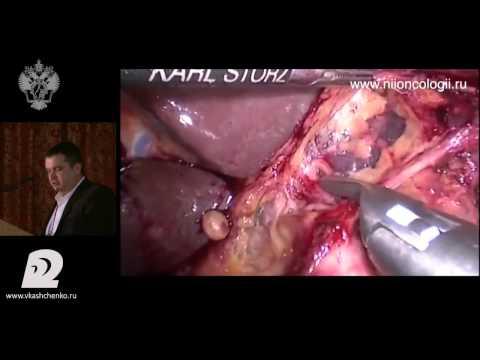 Рак желудка – причины, признаки, симптомы и лечение рака