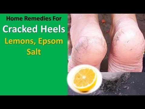 Home Remedies for Cracked Heels - Lemons, Epsom Salt