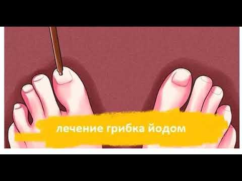 Йод от грибка ногтей на ногах