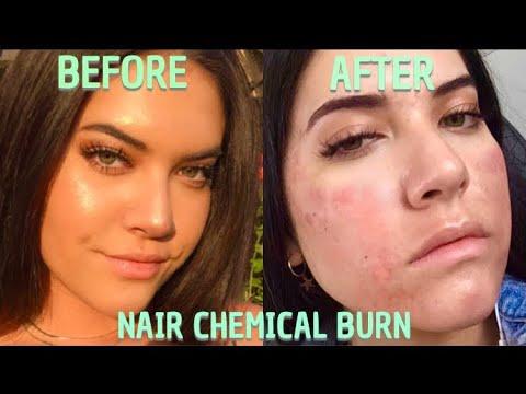 Burn remedy nair Chemically burn