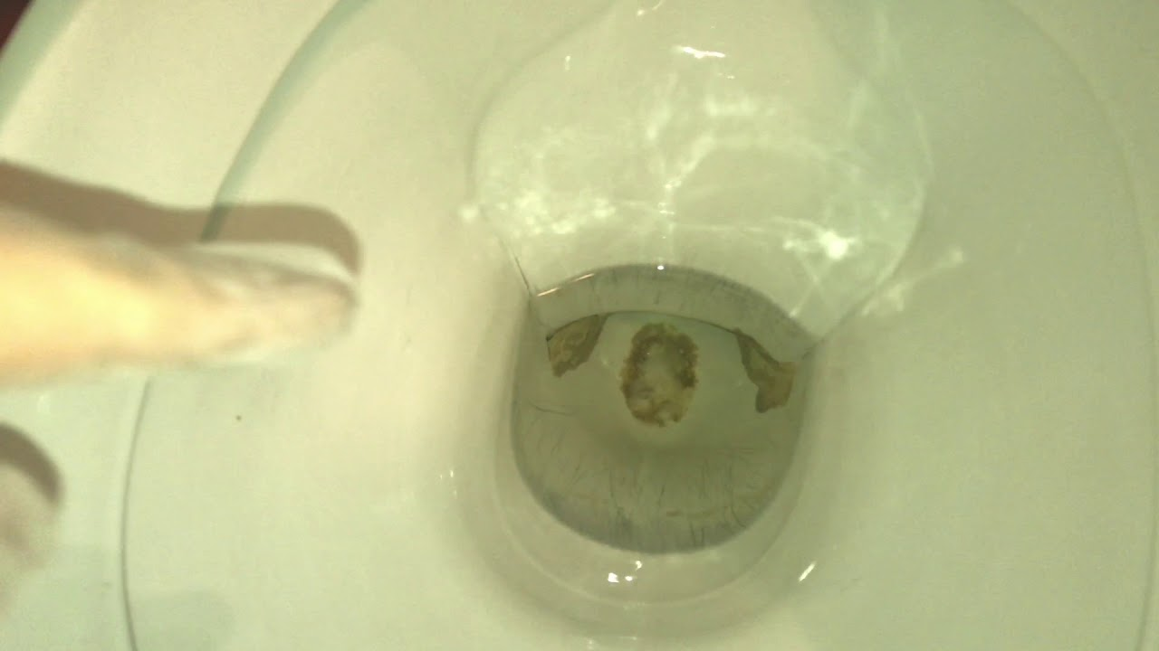 Super Urinstein in der Toilette entfernen mit Ätznatron (Natriumhydroxid DD38