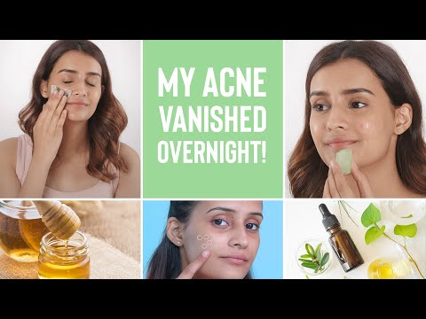 How To Make Your Acne Disappear Overnight   4 Home Remedies For Pimples