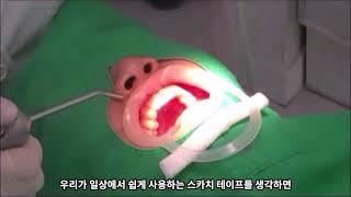 왜소치, 레진? 라미네이트? (치과의사 에르나 실시간 …