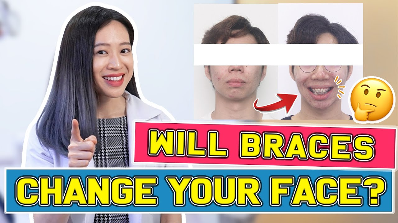 Download Will Braces Change Your FACE?   #BraceYourself!🦷
