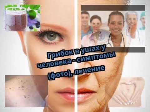 Грибок в ушах у человека - симптомы (фото), лечение