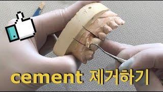 치과위생사의 일상 접착제 제거하기 cement 제거하기