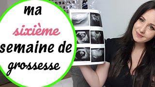 🍼 6ème semaine de grossesse ( écho de datation )