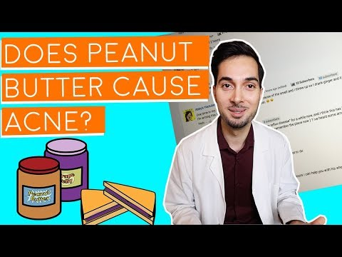 Does Peanut Butter Cause Acne  Responding To Your Comments