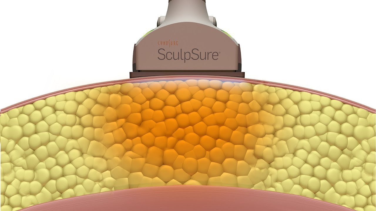Cynosure SculpSure Method of Action