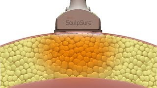 Cynosure SculpSure Method of Action (2017)