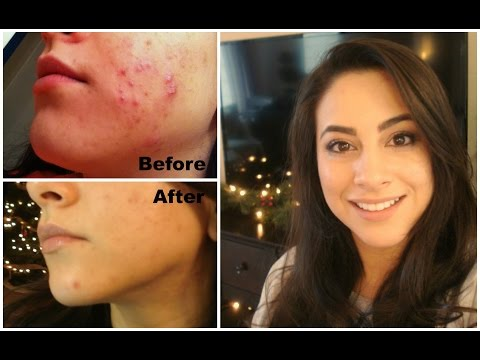 What to Eat For Acne & Healthy Glowing Skin | How I cleared my  Acne | How I cleared my skin PART 1