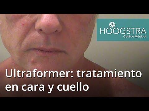 Ultraformer en cara y cuello en paciente masculino (17048)