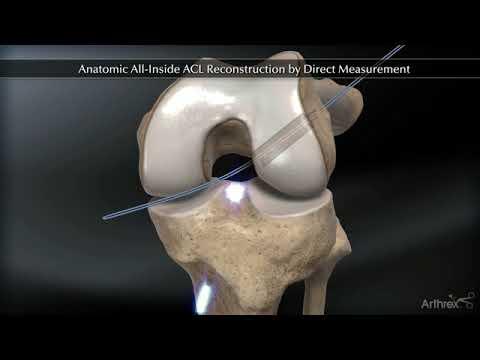 dislocarea și ruperea tratamentului ligamentelor gleznei