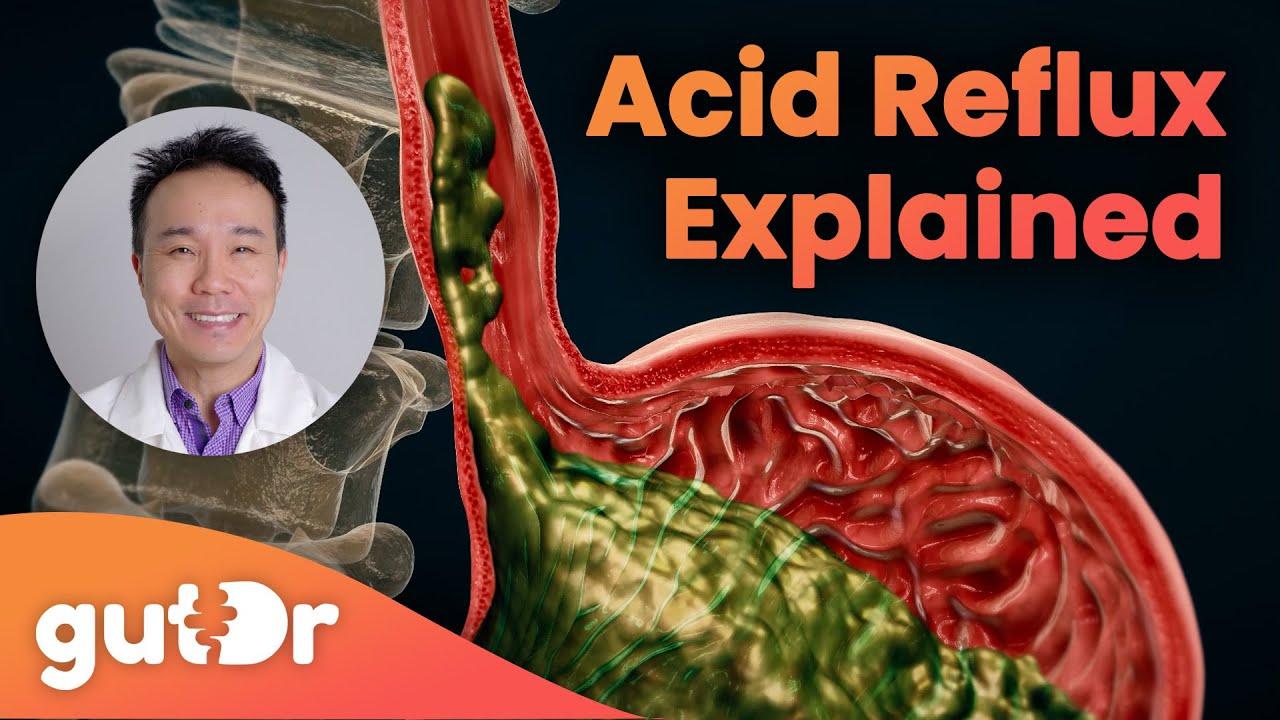 Fogyni gyógyító gerd, A reflux diéta alapelvei
