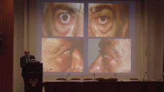Θυρεοειδική Οφθαλμοπάθεια (Graves' syndrome)