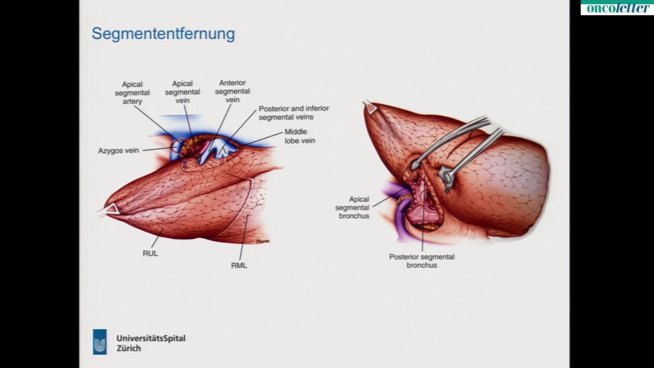 Niedlich Lungen Anatomie Ppt Fotos - Anatomie Ideen - finotti.info
