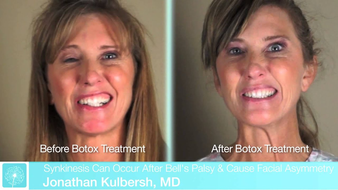 bell's palsy treatment steroid dosage