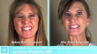 Http://www.carolinafacialplasticsurgery.com/facial-paralysis-2/ in this video, facial plastic surgeon charlotte dr. jonathan kulbersh discusses how botox ...