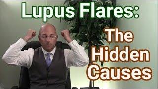 Lupus Treatment | Causes Of Lupus Flares