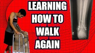 LEARNING HOW TO WALK AGAIN | BROKEN ANKLE (ORIF) RECOVERY