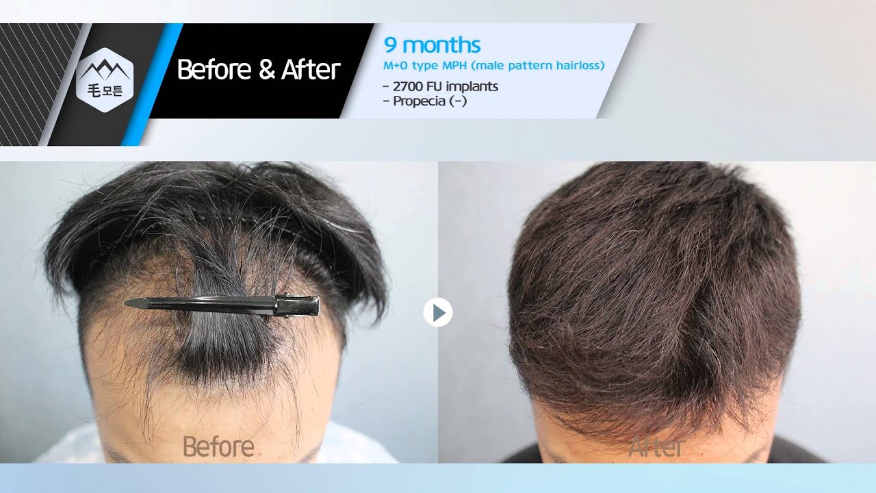 Pattern Hair Loss Magnificent Ideas