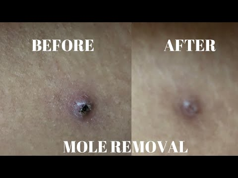 how-to-|-remove-a-mole-naturally!!!-crazy-it-works!!!