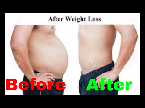 How to lose weight fast in Hindi/lose fat fast/fast weight loss in teenager