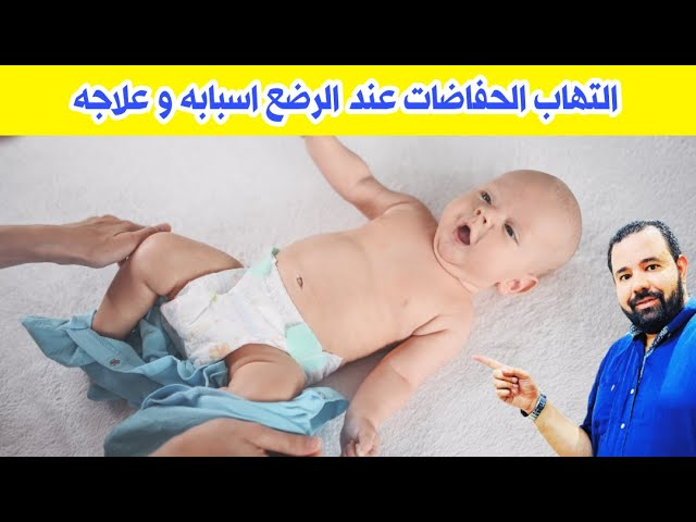 التهاب الحفاضات عند الرضع اسبابه و علاجه علاج التهاب الحفاضات عند الاطفال Youtube