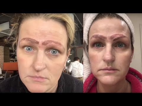 Beto - Woman Ends Up With 4 Eyebrows After Microblading Incident