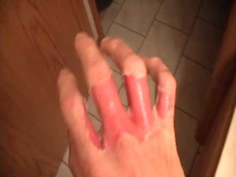 First degree burn on hand