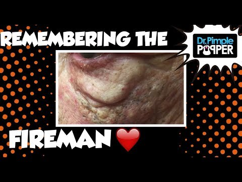 Remembering the Fireman and his Blackheads