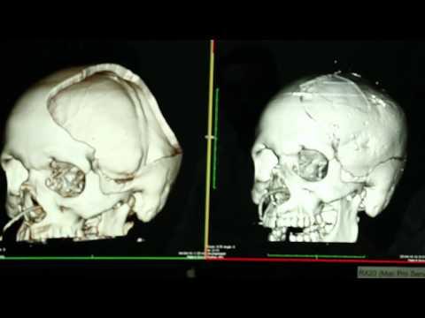 Husm utiliza técnica inédita de impressão 3D para reconstrução de crânio