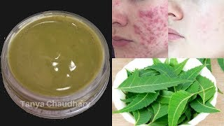 DIY NEEM CREAM | Remove Skin Pigmentation, Dark Spots & Acne Scars Easily at Home-100% Natural Cream