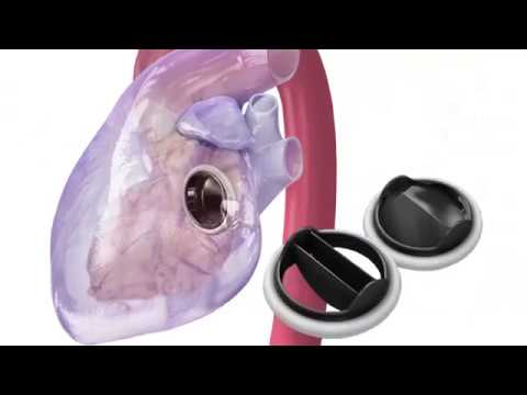 HealthBreak | Mitral Valve Replacement