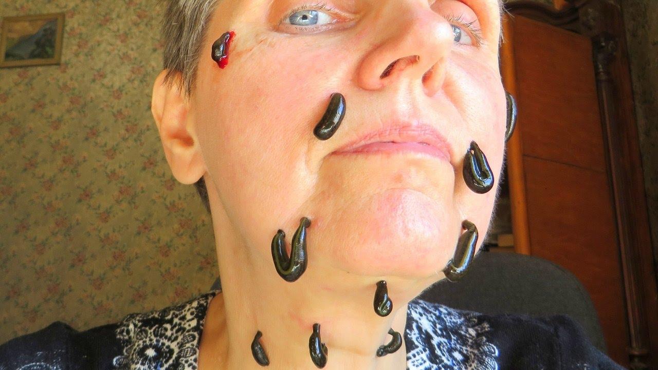 хорошая картинка гирудотерапия в косметологии узнать