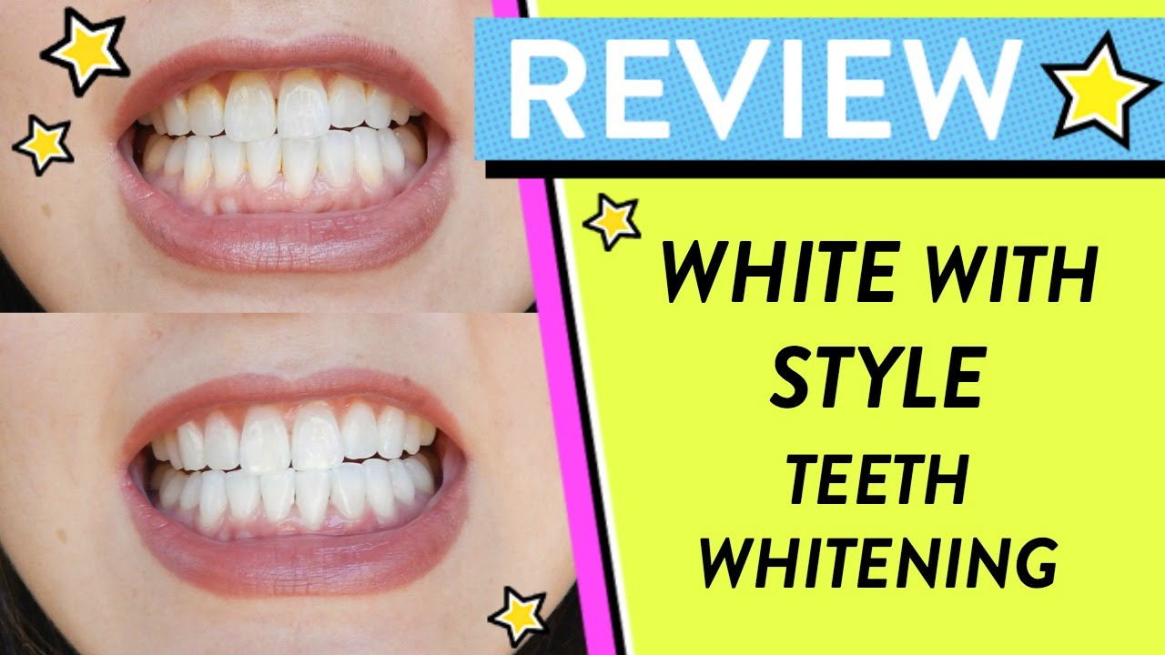 Review Whitening My Teeth With White With Style Hellohannahcho