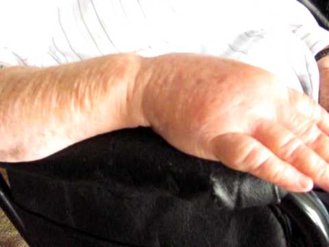 Phlebitis in hand - Part 2