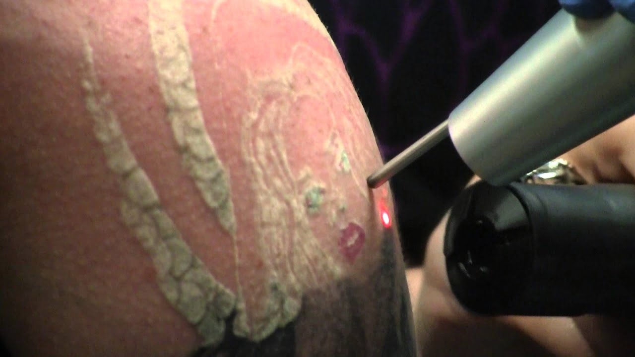 Tattoo Removal Process >> The Tattoo Removal Process Youtube