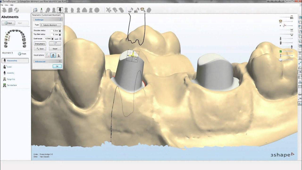 Dental System 2010  Abutment Designer  YouTube