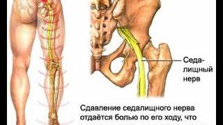 Ортопедический корсет для коррекции осанки(, 2014-12-18T13:15:06.000Z)