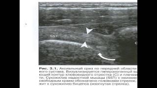 УЗИ плечевого сустава