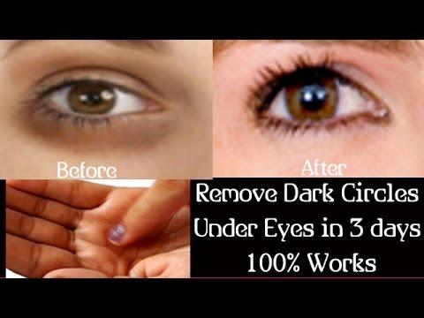 Remove Dark Circles Under Eyes at Home Simple Dark Circles ...