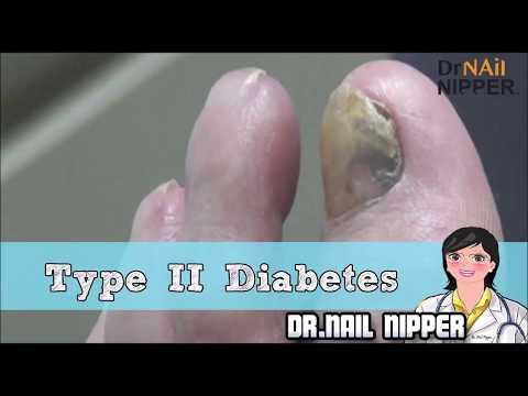Type 2 Diabetes  Foot Care Patient