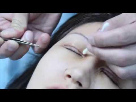 Блефаропластика ONLINE | Ким Константин Германович  (хирург)