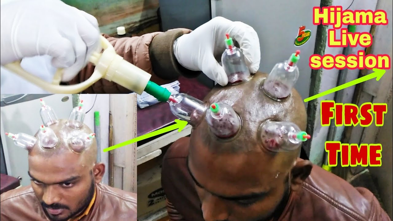 Download My First Hijama Session | REGROW HAIR BY HIJAMA CUPPING THERAPY |  HINDI |