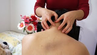 ASMR YOU CAN FEEL!! *BINAURAL SCRATCHING* Nape of the Neck UP the Scalp + Upper Back SCRATCHING!!