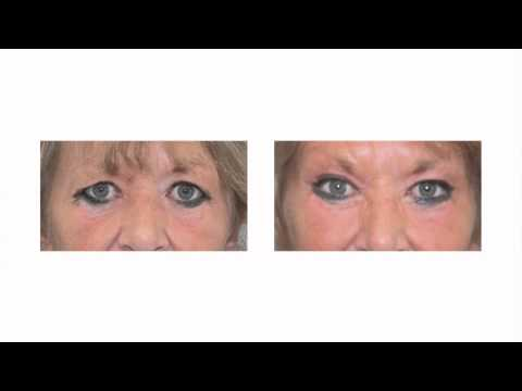 Aging Brows & Brow Position | Brow Lift Surgery